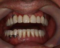 big3.3-Tratament-clinic-si-protetic-finalizat-cu-succes-dupa-cerintele-pacientului.-500x350