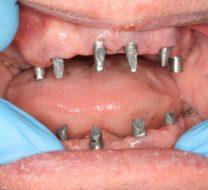 bonturile-protetice-montate-pe-implanturi-500x350