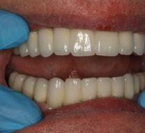 lucrarea-finala-pe-implanturi-500x350